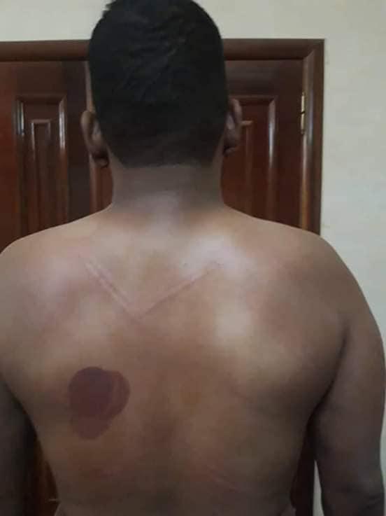 آثار التعذيب الذي تعرض له ولد عبد العزيز